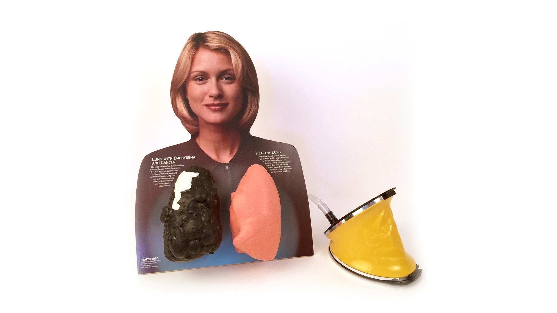 Lou-wheeze, the flexible lung model.