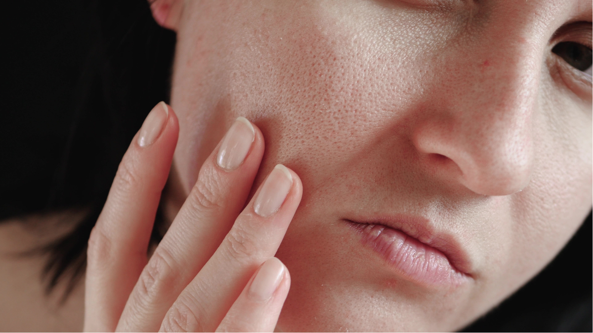A woman rubbing her face. Large, exposed pores are shown.