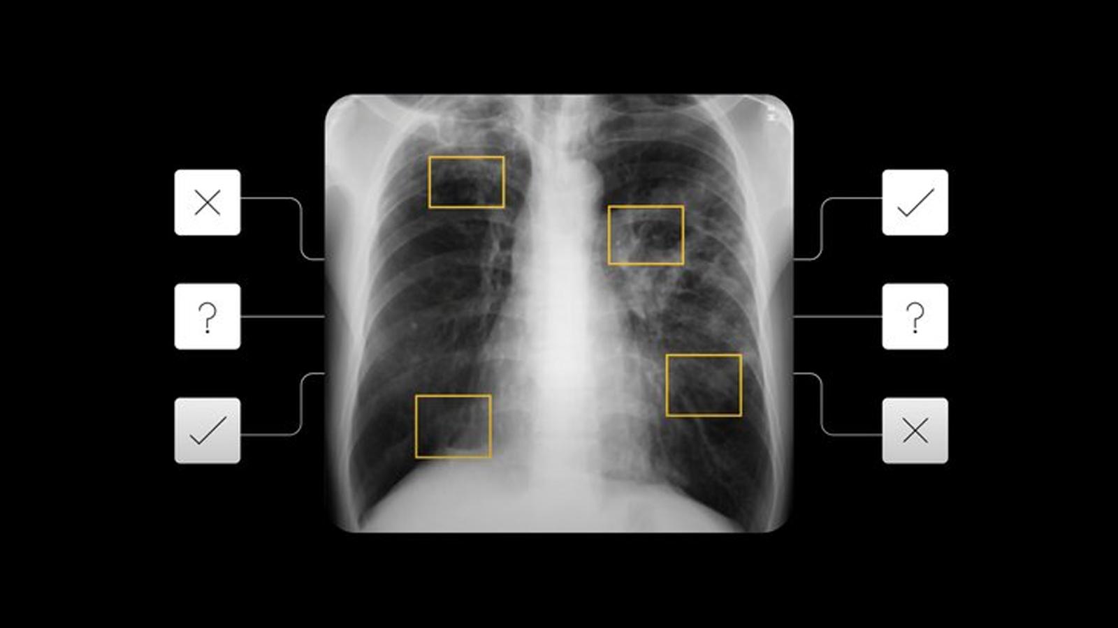 Google's AI tech helping screen tuberculosis x-rays