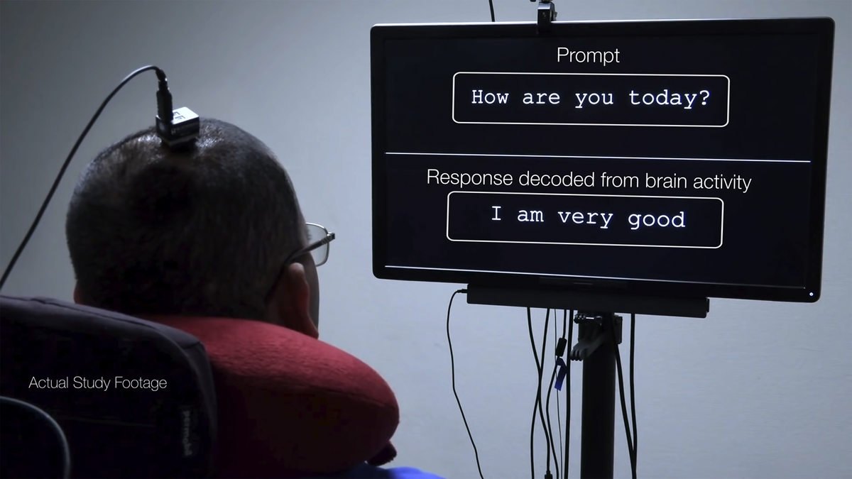 A photo of the speech neuroprosthesis in action.