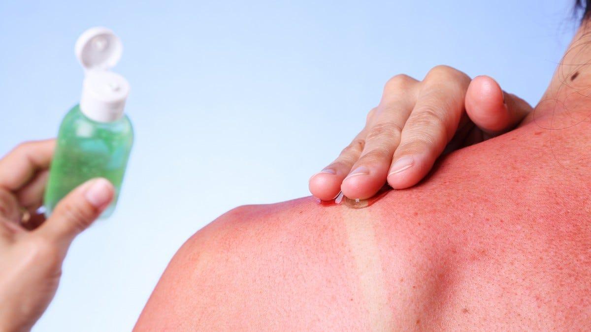 A woman applying aloe vera to her shoulder sunburn.