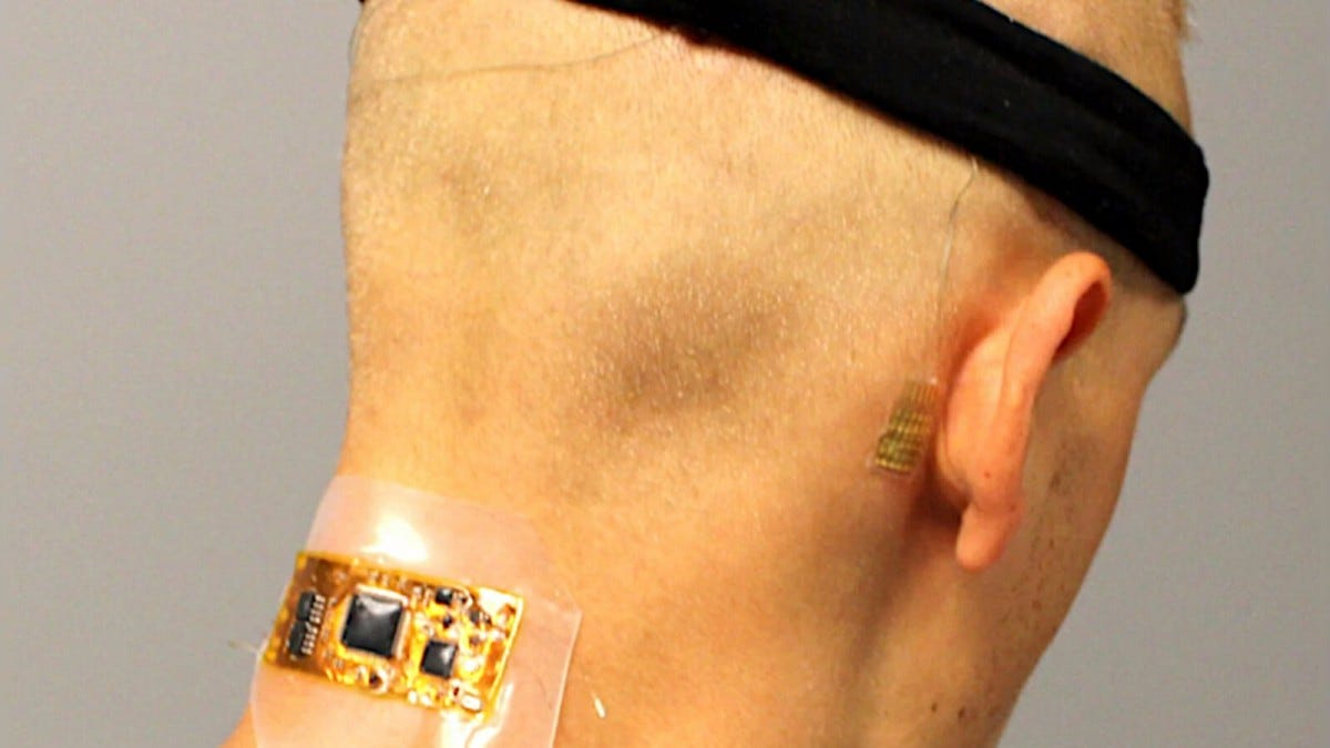 Wireless brain computer interface electrodes.